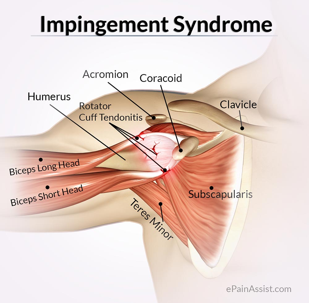 impingement-syndrome
