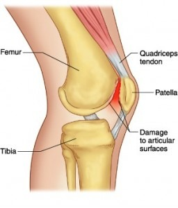 runners-knee-256x300