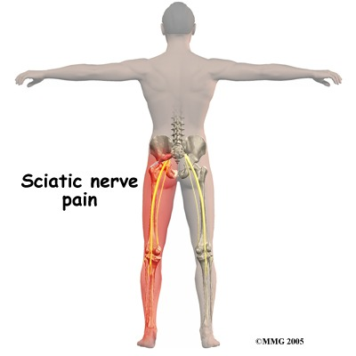 Sciatic Nerve Pain and How to Stop it! - Lilly Physical Therapy in ...