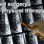 Can Physical Therapy Be as Effective as Surgery?