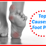 Top 5 Causes of Foot Pain